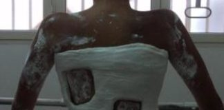 Centro Scoliosi Bari