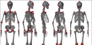 specialista colonna vertebrale bari