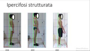 ipercifosi strutturata - centro studi postura